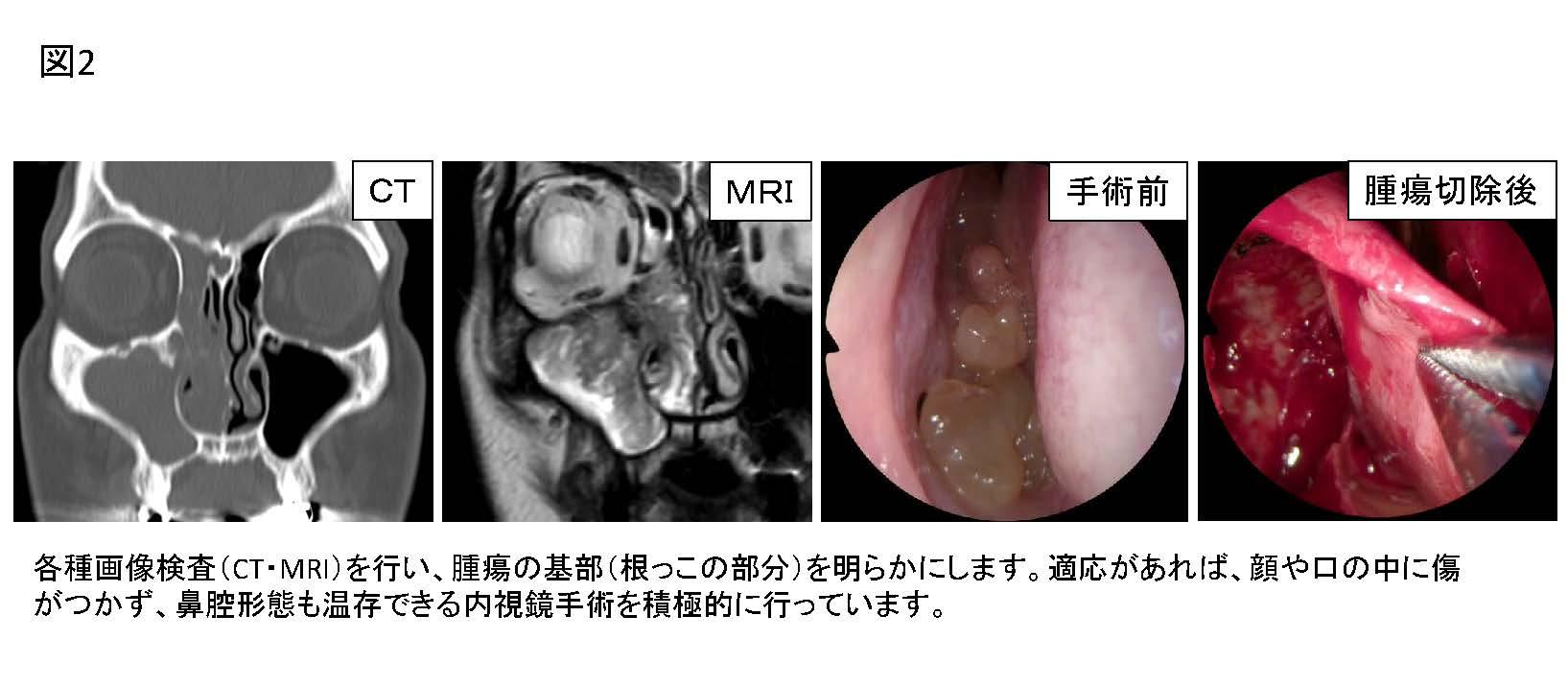 コロナ 後ろ 耳 の 腫れ